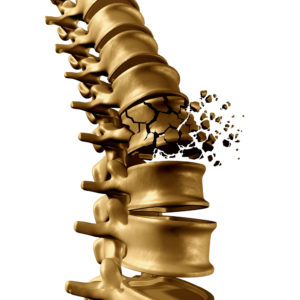 Osteoporosis Medications